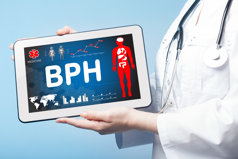 BPH Could Lead to ED