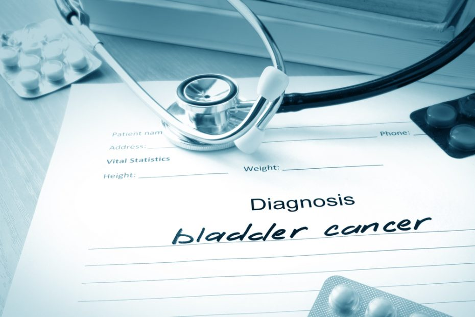 Clinicians Can Now Personalize Bladder Cancer Treatment