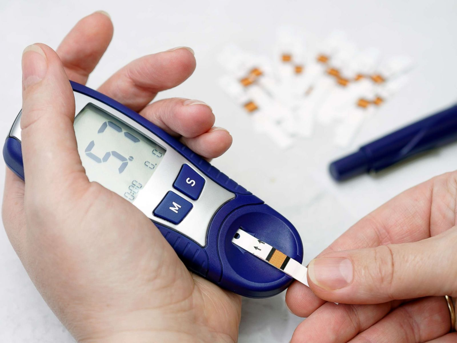 Diabetes- A commonly overlooked Cause of ED