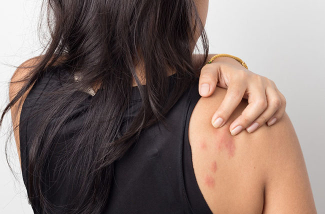 hives-and-skin.treatment-causes-and-symptoms