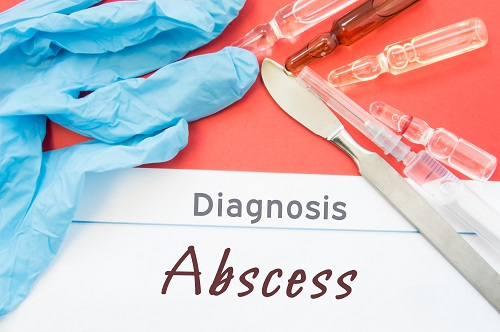 Diagnosis Abscess. Blue gloves, surgical scalpel, syringe and ampoule with medicine lie next to inscription Abscess. Causes, symptoms, diagnosis, treatment, diet of this surgical disease